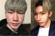 韩国男生整容常见项目大起底!惊艳效果图教你变身男团脸!