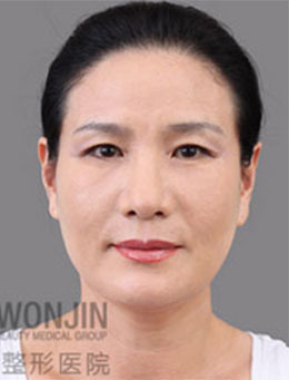 韩国原辰整形外科抗衰老除皱整形前后对比案例
