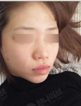 韩国韩拿eve整形外科鼻综合案例对比效果