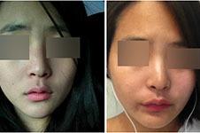 韩国drham治疗疤痕贵吗?真实效果告诉你这样收费没毛病!
