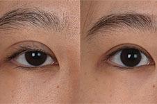 韩国gio包眼修复做的如何?韩国擅长眼修复医院还有哪些?