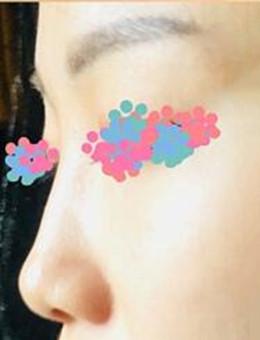 韩国LeeYoung整形外科玻尿酸隆鼻案例图