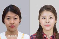 韓國蕾切爾醫院面部脂肪填充怎么樣?真人恢復照片分享!