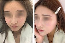 焕肤美白是否够神奇 diva做皮肤管理和美lab童颜中心比谁好?