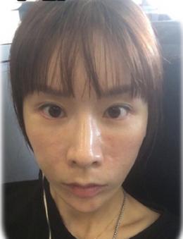 韩国diva整形外科面部脂肪填充手术案例