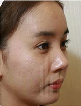 韩国MeTop整形外科面部脂肪填充手术案例_术后