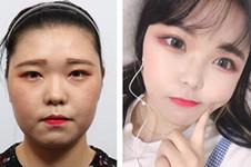 韩国hb整形口碑好吗?真人眼部轮廓整形术后恢复图曝光!
