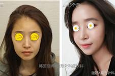 韩国丽妍K做脂肪填充和当红女神整形医院比怎么样?