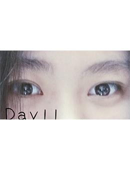 韩国diva整形外科眼综合手术恢复日记