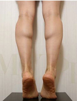 韩国美妙整形医院-韩国MeTop整形外科小腿神经阻断术手术案例
