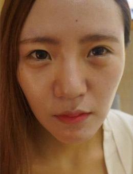 韩国K-Beauty隆鼻+双眼皮脂肪填充3个月恢复案例_术前