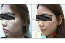 韩国K-beauty整形医院海量案例曝光,提升除皱案例眼前一亮!