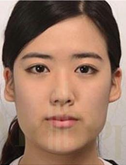 韩国美妙整形医院-韩国MeTop整形外科面部轮廓整形手术对比案例