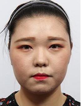 韩国HB整形外科眼部手术恢复日记_术前