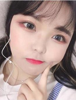 韩国HB整形外科眼部手术恢复日记_术后