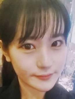 韩国k-beauty柳重锡眼睛案例前后对比图_术后