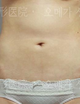 韩国omega整形外科腰腹吸脂案例_术后