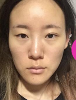 韩国HB整形外科面部轮廓手术对比案例_术前