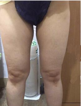 韩国HB整形外科大腿吸脂手术对比案例_术前