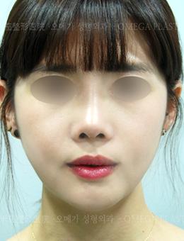 韩国omega整形外科轮廓案例_术后
