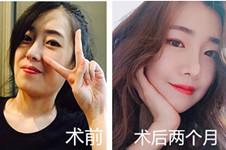 韩国hb医院方法、特色公开,郑泰光做颧骨+李炫直做唇形