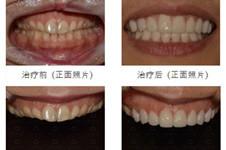 韩国明星常去的安特丽医院牙齿美白美容多少钱?