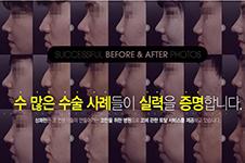 鼻梁骨和鼻中隔都歪了,韩国清新和will整形会如何手术?