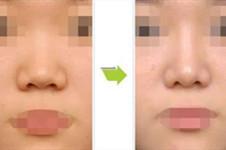 鼻子凹陷怎么整?哪些医院手术效果好?