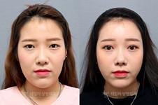 卓佑炫醫生學歷背景資料曝光,中國爆紅都因額頭提升做得好!