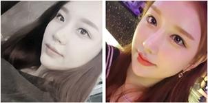 韩国女神医院微笑唇效果怎么样,手术需要多少钱?