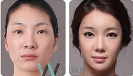 韩国原辰和菲斯莱茵 哪家医院鼻子整形做得好?