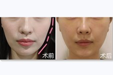 哪些皮肤除皱手术没有副作用,价格一般是多少?