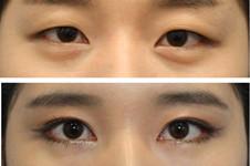 韩国cherish去黑眼圈用什么手术方法?效果怎么样?价格贵吗?