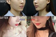 韩国首尔丽格皮肤管理为什么这么火?听听做过的妹子怎么说