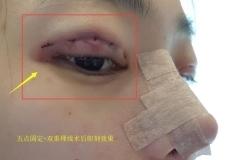 """韩国纯真整形""""萌动初恋眼""""有什么特色?和双眼皮手术有"""