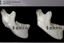 轮廓手术失败不用怕,白汀桓修复人工骨3d打印技术超逆天!