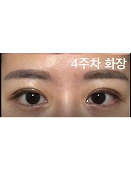 韩国1mm整形外科初眼整形案例合集!