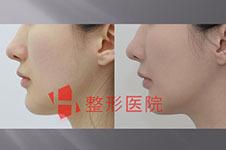 韩国h整形鼻子医生白汀桓口碑如何?做手术贵吗?