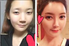 韩国k整形医院怎么样?开眼角下至术后能直接带美瞳?