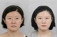 眼尾提眉术能保持多久,手术多少钱危害副作用有哪些?