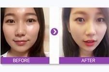韩国artline整形医院擅长什么项目?官网案例效果受好评吗?