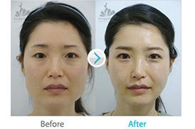 韩国SF整形外科面部轮廓手术有什么不一样?案例对比如何?