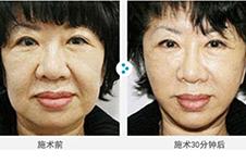 韩国Miracle美来可医院面部提升手术好吗?效果对比明显吗?