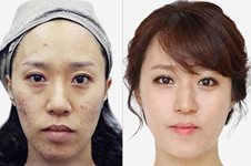 韩国BLS皮肤科经常被明星光顾吗?都擅长什么项目?