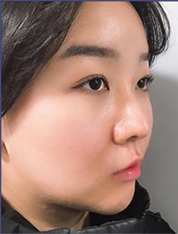 韩国玉芭uber鼻综合+面部提升案例解析