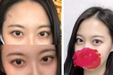 分享我在韩国CRAPAS蜡笔整形医院做双眼皮手术经历!