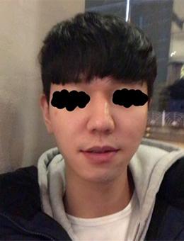 韩国UBER整形医院男士鼻综合整形效果图