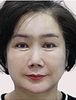 韩国Queenspark整形外科面部除皱手术案例_术后