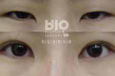 韩国BIO整形外科做上睑下垂手术好吗?案例效果对比明显吗
