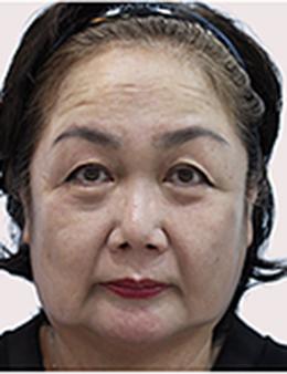 韩国Queenspark整形外科面部除皱手术案例_术前